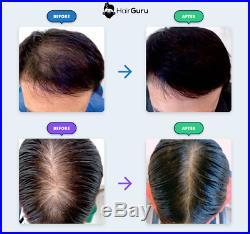 Laser Cap 81 Thinning Hair Loss Treatment & Hair Regrowth for Men & Women