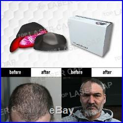 Refurbished 272 Diodes Laser Hair Cap/Helmet Hair Regrowth Treatment Women& Men